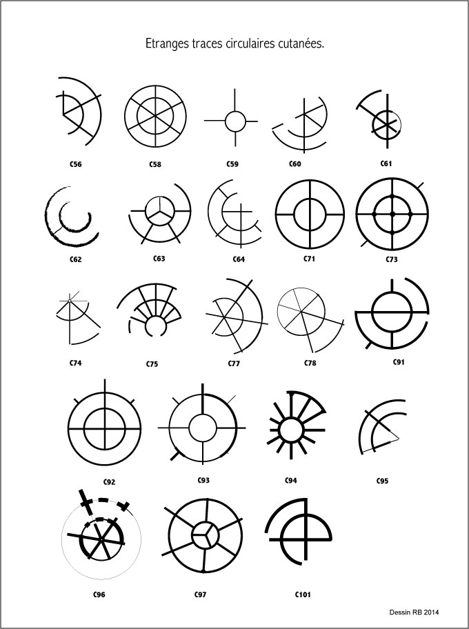 Étranges traces circulaires cutanées. - Page 29 Les-cas-03-4580650