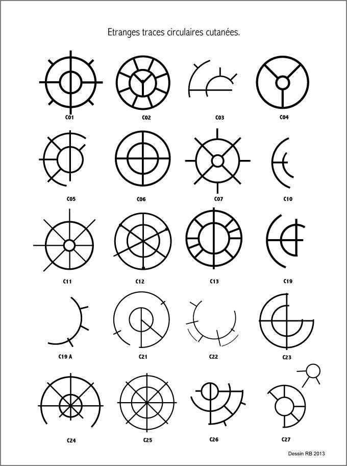 Étranges traces circulaires cutanées.  - Page 2 Les-cas-01-455f1a0