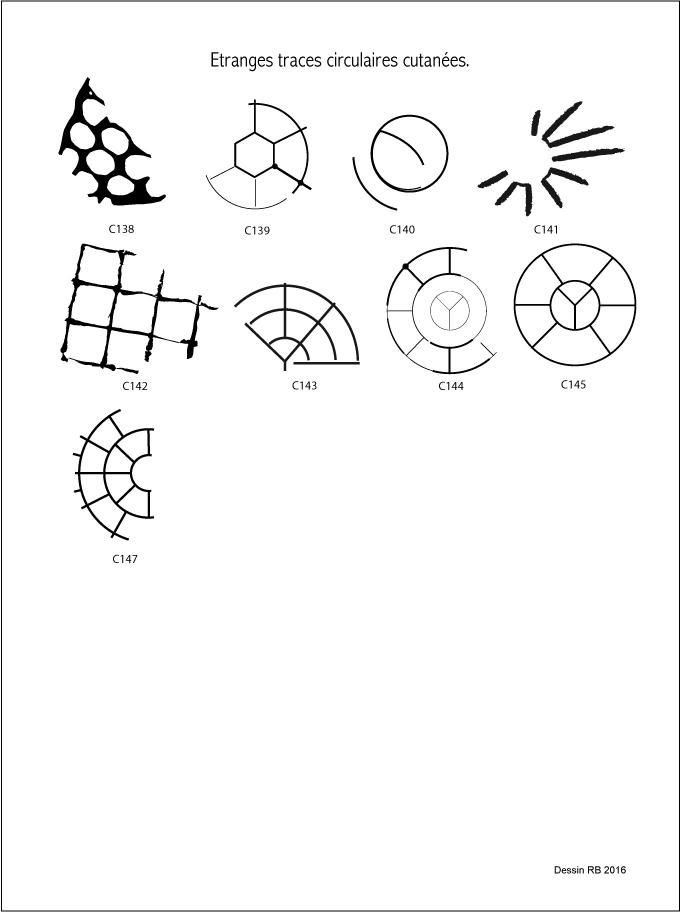 Étranges traces circulaires cutanées. - Page 29 Les-cas-06-5061ea1
