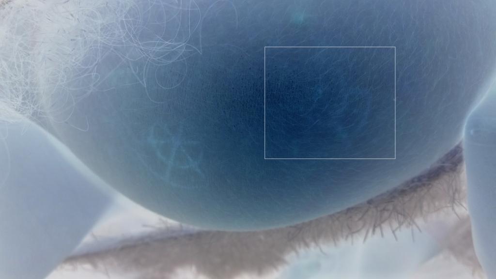 Étranges traces circulaires cutanées. - Page 27 Photo-n-4e3702d