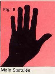 La forme générale de vos mains Figure-9-4c06812