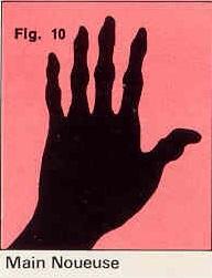 La forme générale de vos mains Figure-10-4c06823