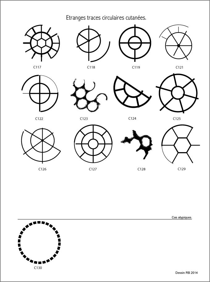 Étranges traces circulaires cutanées.  - Page 2 Les-cas-05-4dca0e6