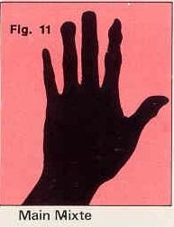 La forme générale de vos mains Figure-11-4c06826