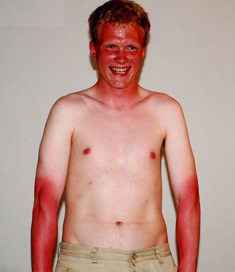 Black bass maroc bbm la p che et les accidents qui peuvent survenir - Coup de soleil 2eme degre ...