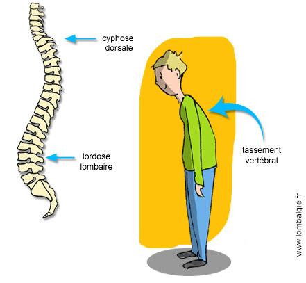 Le massage sur le cou à osteokhondroze vidéo