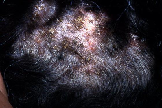 Le shampooing du psoriasis par les mains