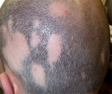 Ooo le traitement des cheveu