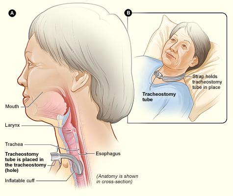 La figure A montre une vue de c  244 t  233  du cou et le placement correct d    Ventilator Patient Child