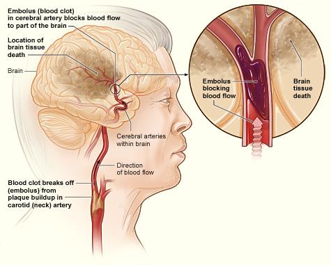caillot de sang uterus