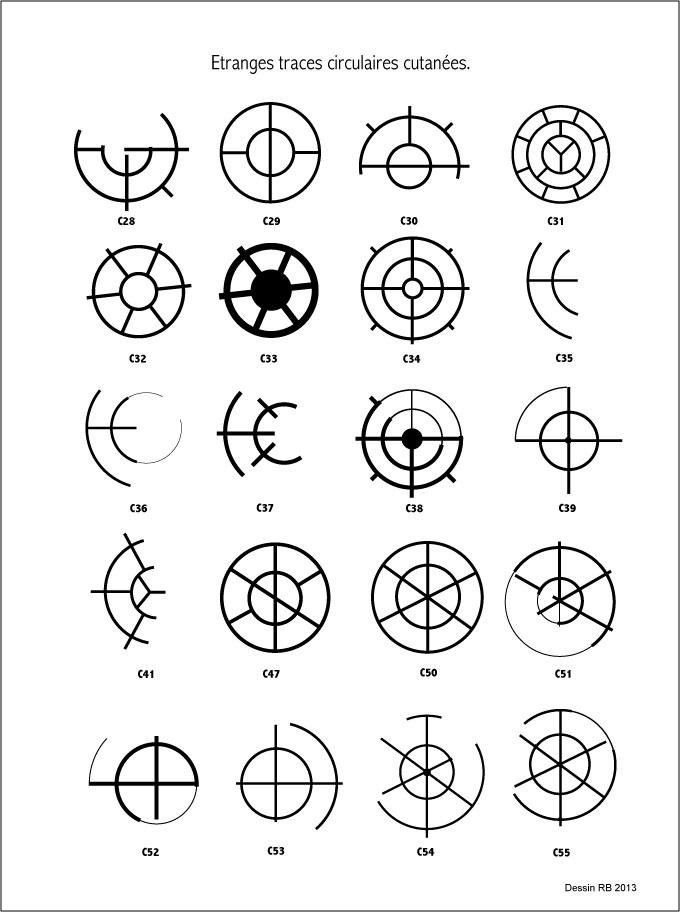 Étranges traces circulaires cutanées. - Page 29 Les-cas-02-42b25c6