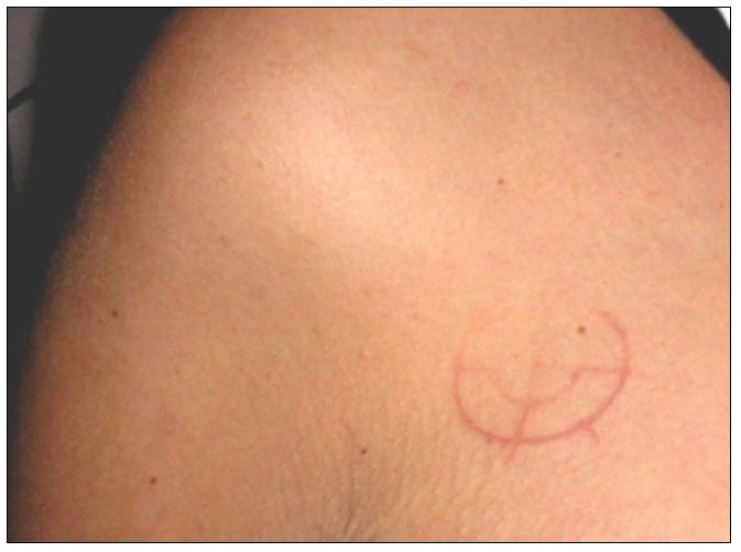 Étranges traces circulaires cutanées.  Signe-28-4149f92