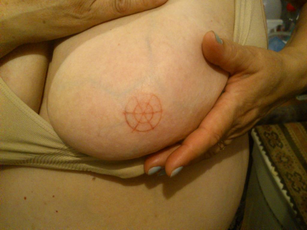 Étranges traces circulaires cutanées.  Signe-12c-41b7c4b